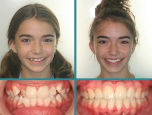 Before After Case at Orthodontic Specialist - 1-2