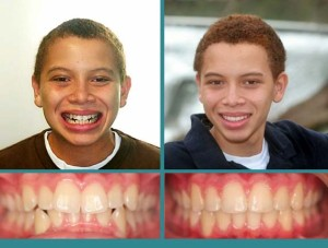 Before After Case at Orthodontic Specialist - 21