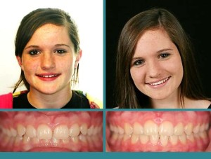 Before After Case at Orthodontic Specialist - 24